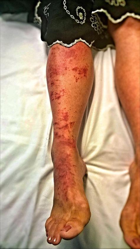 Cellulitus Blood Poisoning